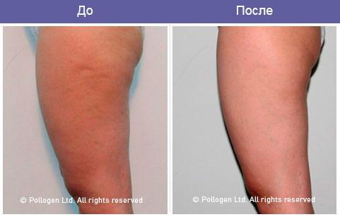 Технология trilipo - это одновременное воздействие 2-х технологий: • rf – энергии (trilipo rf) – избирательное нагревание дермы и жировой ткан такое сочетание технологий обеспечивает многоуровневую подтяжку (лифтинг) мышц и дермы, подобная хирургической подтяжке кожи, с одновременным эффектом ускорения лимфо- и кровообращения.